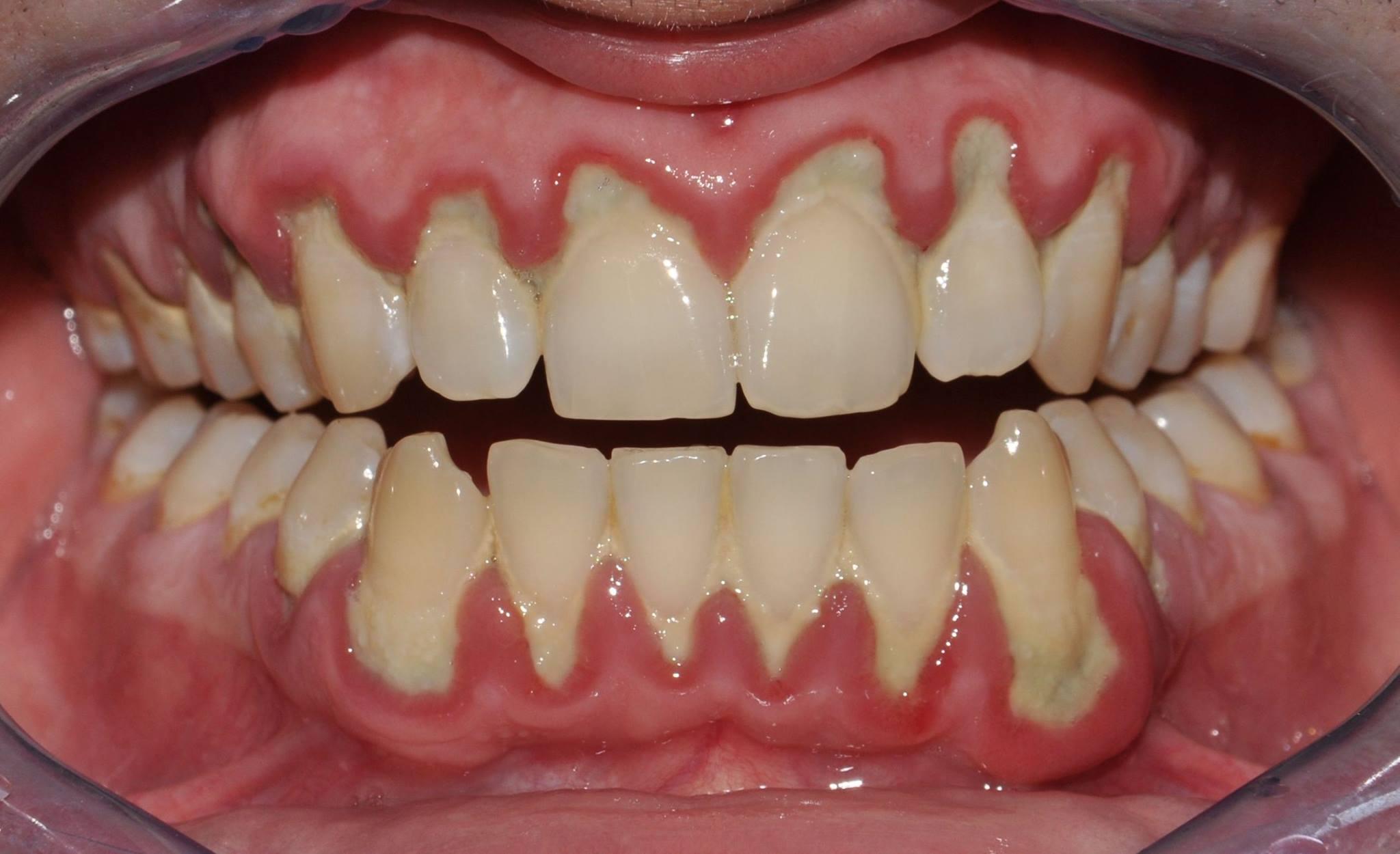 Tartaro: come eliminarlo evitando il dentista | Fanmagazine