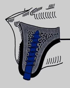 dentista bari, implantologia, impianti dentali