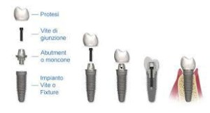 dentista bari, impianti dentali