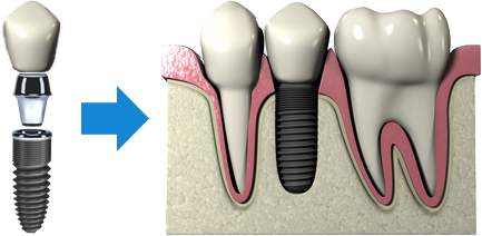 Implantologia dentale: cos'è?