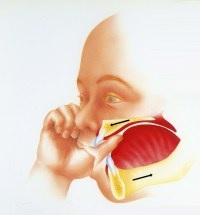 ortodonzia , dentista a bari