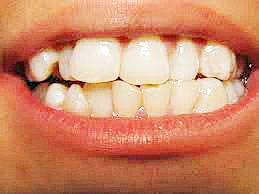 carie dentali, dentista bari