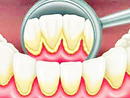 cause carie, dentista a basr
