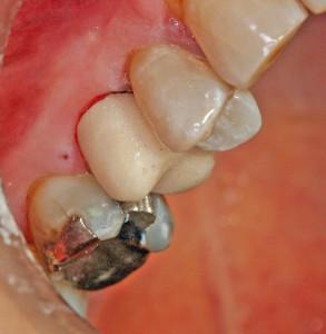 Come ricostruire un dente fratturato - Tomasicchio Dentista a Bari