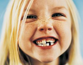 Carie dentali: cause