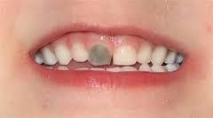denti da latte - dente nero