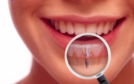 Implantologia Dentale, le Tecniche Chirurgiche
