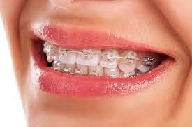 Come pulire l'apparecchio ortodontico