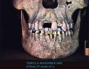 ortodonzia: storia e curiosità