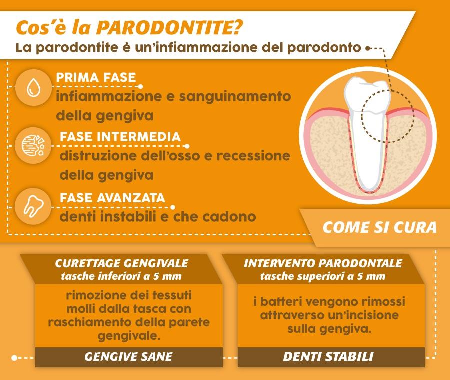 Cos'è la parodontite