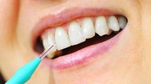 Scovolino per denti: cos'è, come si usa e vantaggi